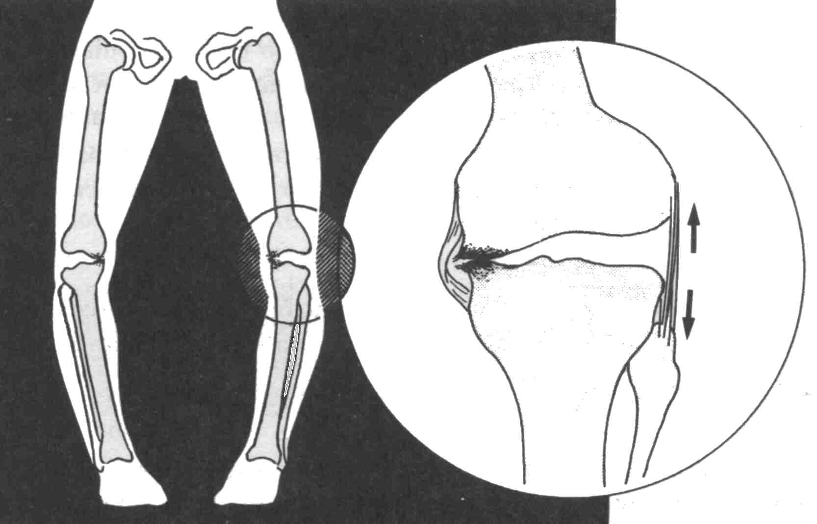 Genu varum (grafico)