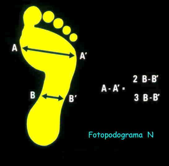Muestra la relación normal itsmo (B-B´) - antepie (A-A´).